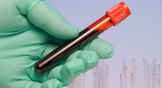 Univerzalni test za otkrivanje raka