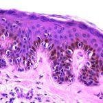 Umjetni madež upozorava na rane faze karcinoma