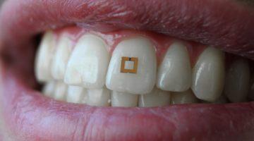 Pametni senzor na zubu