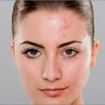 Kako spriječiti akne